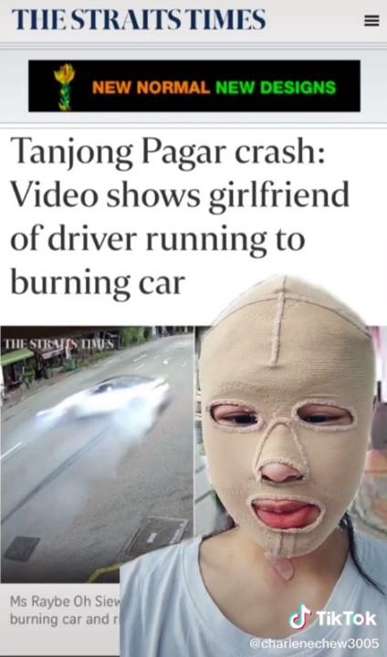 シンガポール火傷被害者